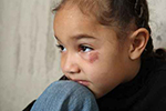 Young girl with bruised eye rests her head on her knee, represents interventions to prevent violence.