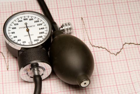Manual blood pressure monitor on top of an EKG report